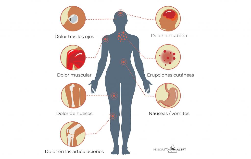 síntomas del dengue leve